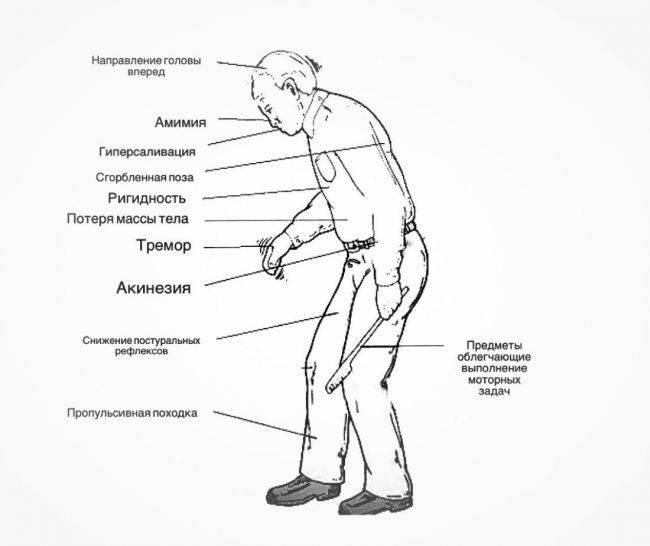 болезнь паркинсона первые симптомы