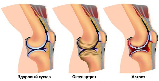 Чем лечить больные суставы